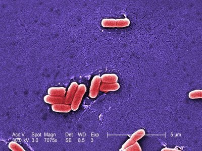E. coli Infection In Humans