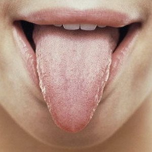 Symptoms Of Yeast Infection In The Throat