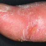 Systemic sclerosis finger