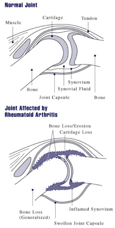 A diagram showing how rheumatoid arthritis affects a joint