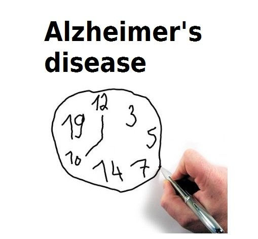 Alzheimer's disease and time
