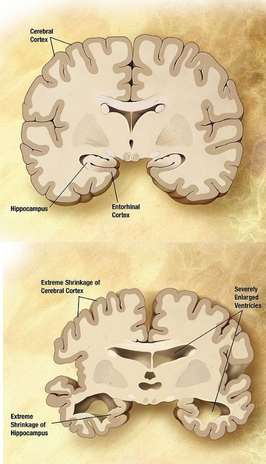 Alzheimer's disease. Brain comparison