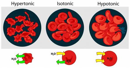How does sickle cell anemia affect the body
