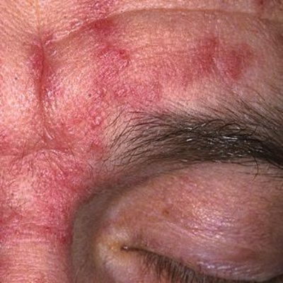 symptoms seborrheic dermatitis