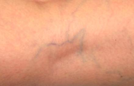 Spider veins on skin