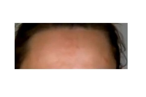 Dark spots on forehead
