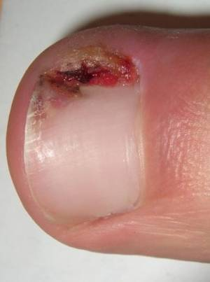 Painful hangnail on finger