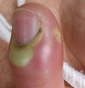 Unfortunately It S Tempting To Bite Off The Hangnail Or Pluck Up Until Separates From Fingernail This Can Result In More Discomfort And Pain