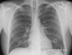 X-ray lungs