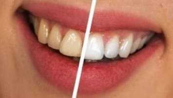 How to get rid of calcium deposits on teeth