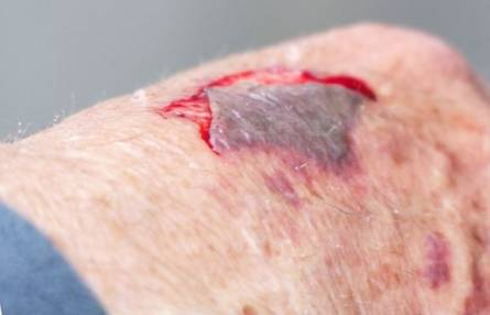 signs and symptoms of abrasion health advisor
