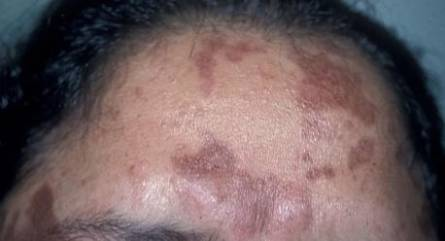 Pigmentation on a forehead