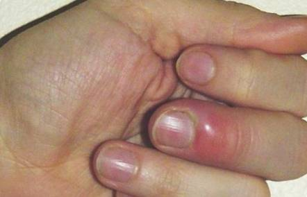 How to cure a hangnail pain