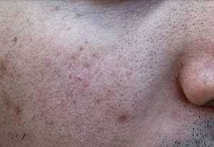 What causes pockmarks on face