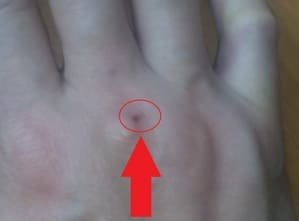 Wound on finger