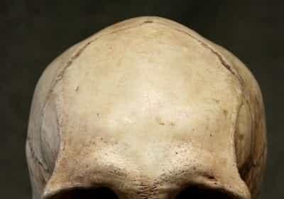 Skull ridges in adults