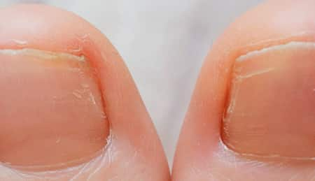 how to fix an ingrown toenail