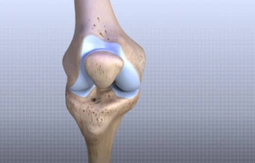 diagnosing knee pain by symptoms