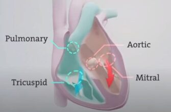 stenosis of aortic valve