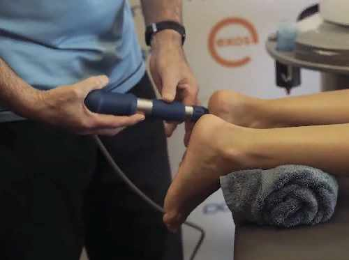 shockwave therapy procedure