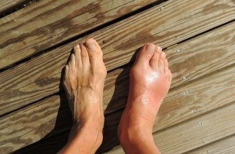 Ankle Swelling: Causes and Remedies