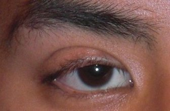 Eyelid Drooping in One Eye: Causes, Symptoms and Treatment