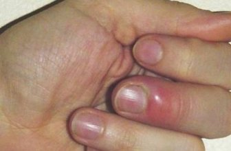 How to Cure a Hangnail Pain?
